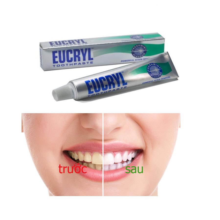 Kem trắng răng Eucryl toothpaste siêu tốc từ Anh 62gr